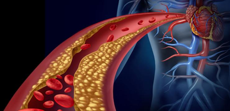 Arteriosclerosis and infarctions